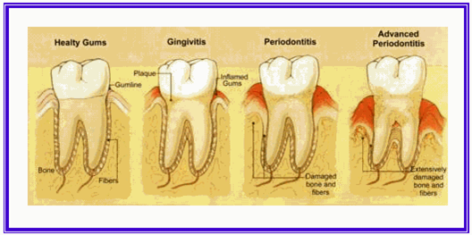 Gingivitis and Periodontitis 1