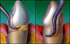 Gingivitis and Periodontitis 10