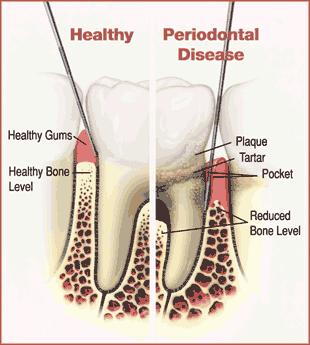 Gingivitis and Periodontitis 2