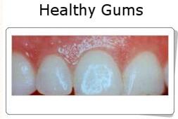 Gingivitis and Periodontitis 3