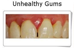 Gingivitis and Periodontitis 4