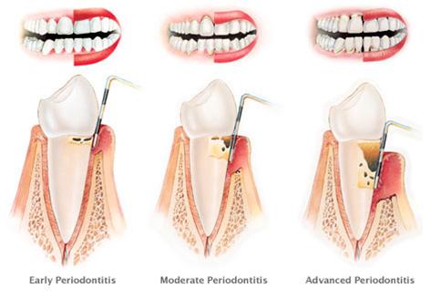 Gingivitis and Periodontitis 5