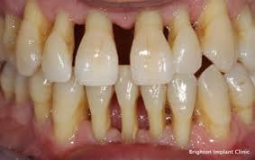 Gingivitis and Periodontitis 6