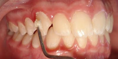Gingivitis and Periodontitis 7