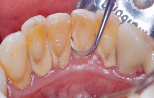 Gingivitis and Periodontitis 8