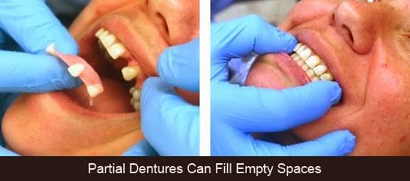 What are Partial Dentures 4