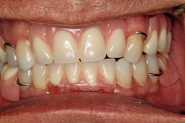 What are Partial Dentures 5