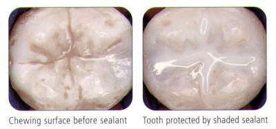 What are Sealants 2