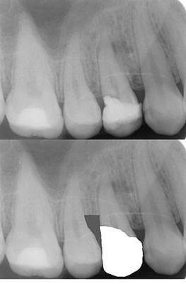 What is Crown Lengthening 2