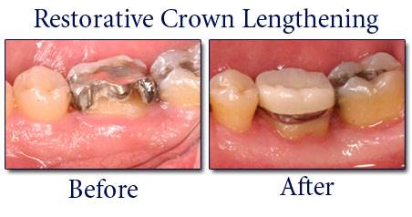 What is Crown Lengthening 3