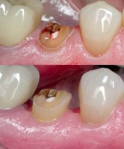 What is Crown Lengthening 4