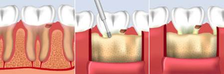 What is Crown Lengthening 5