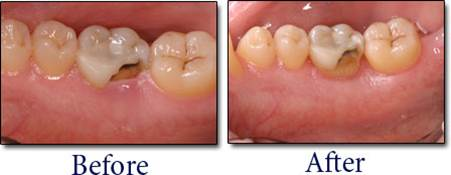 What is Crown Lengthening 8