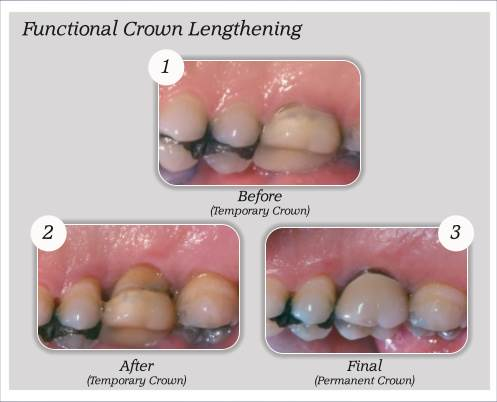 What is Crown Lengthening 9